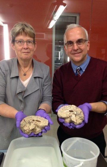 holding a brain, sagittal cut